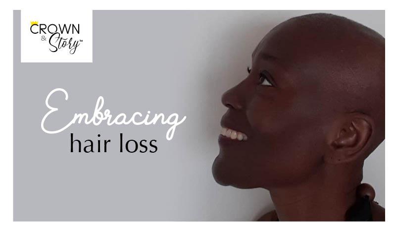 Embracing hair loss blog header image